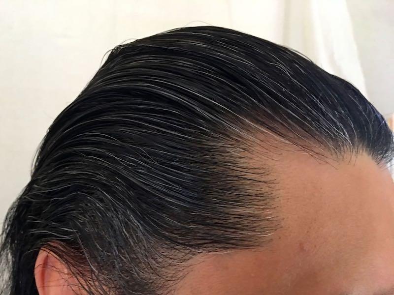 40代男の白髪染め8