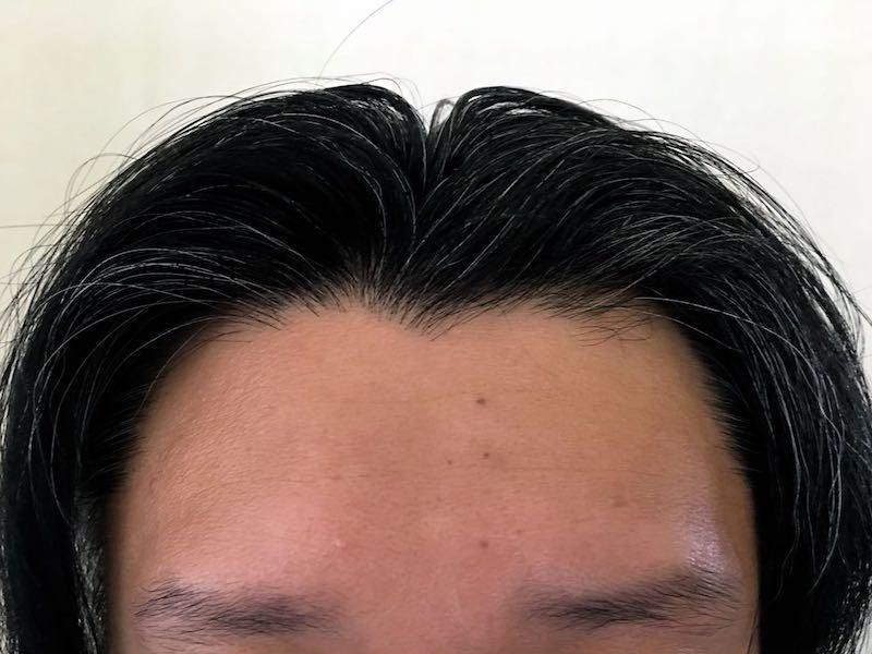 40代男の白髪染め10