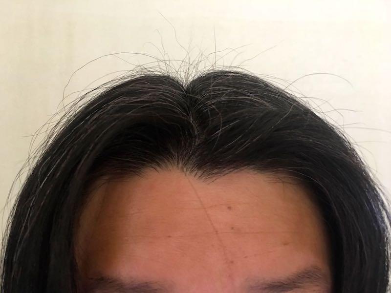 40代男の白髪染め17